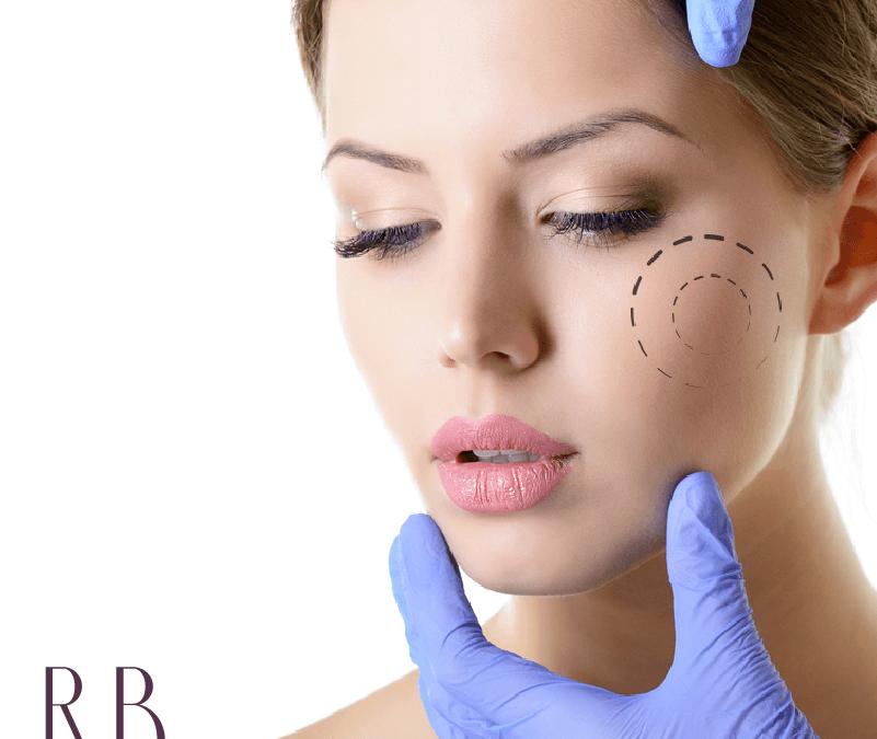 Bichectomia: a cirurgia de bochecha