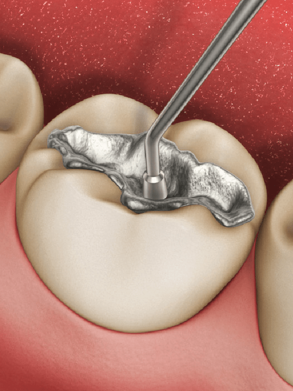 Restaurações - restauração dentária