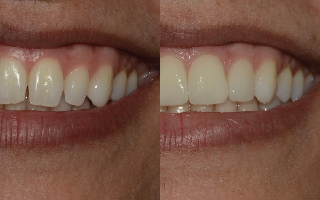 Lente de contato dental: o que é isso?