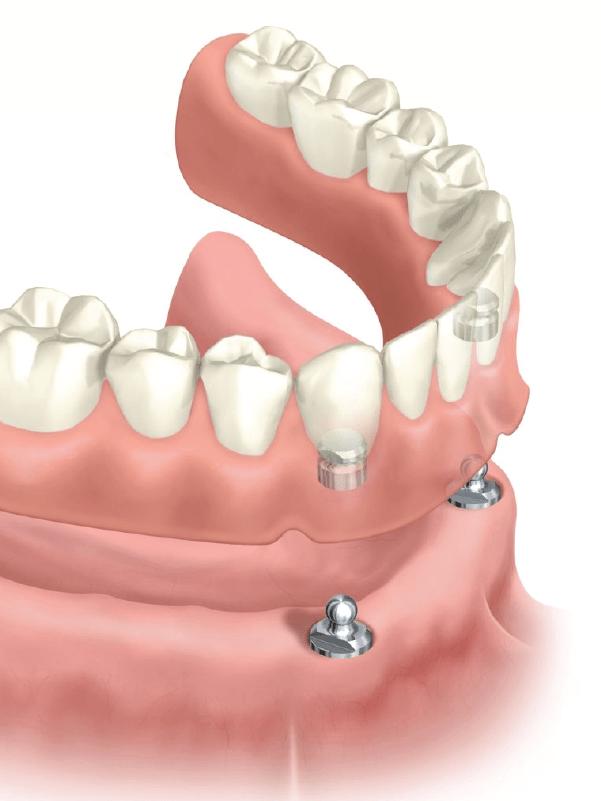 Prótese dentária fixa e prótese dentária móvel