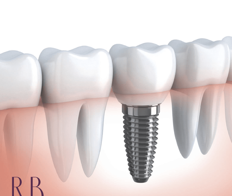 Implantodontia: tudo o que você precisa saber sobre implante