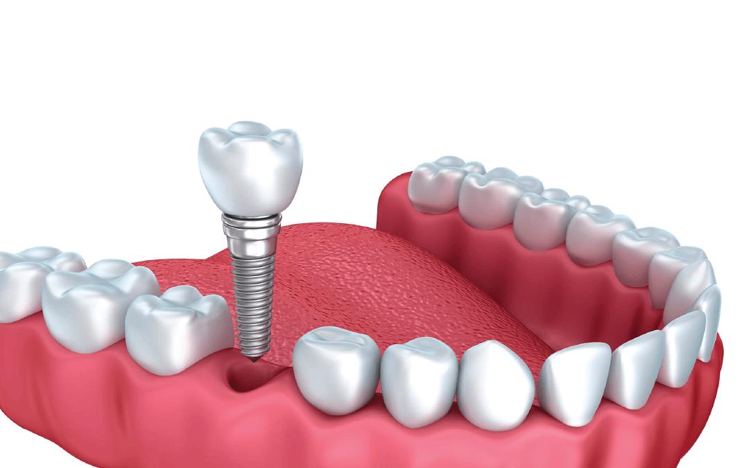 Implantodontia: curiosidades e tudo o que você precisa saber sobre implante de dente
