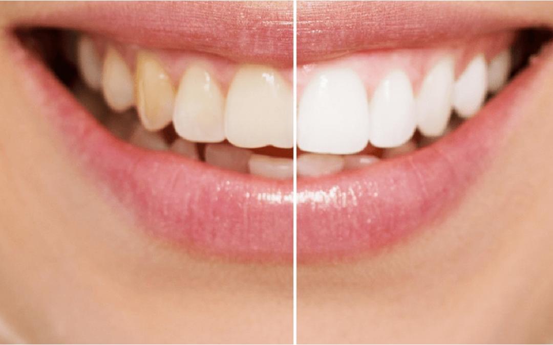 Clareamento dental: o que é, quando e por que fazer