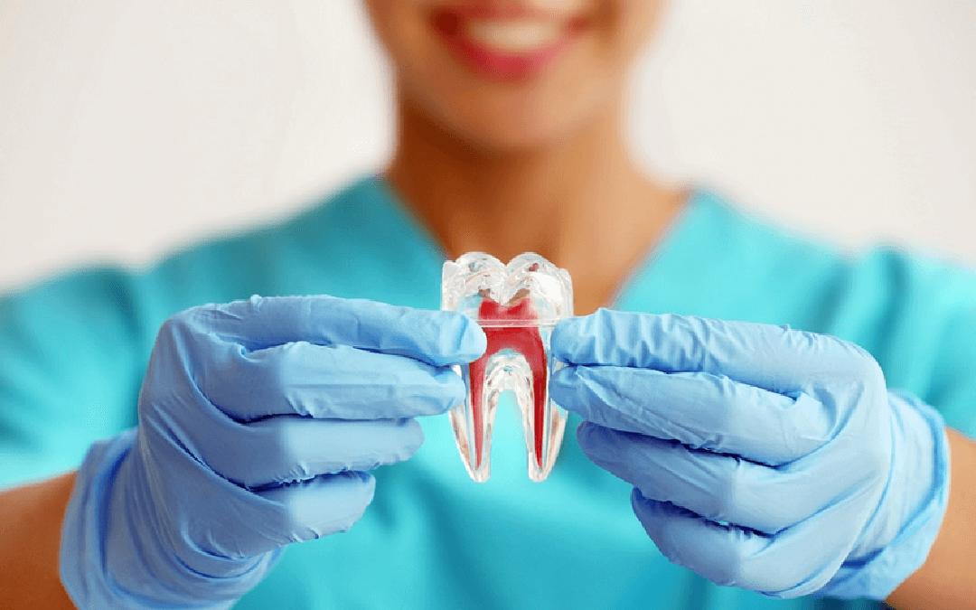 Endodontia: entenda um pouco mais sobre o tratamento de canal (canal dentário)