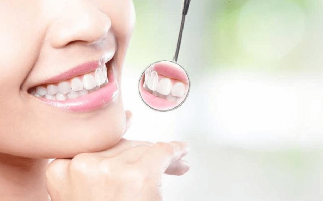 Reabilitação oral: um tópico importante sobre saúde bucal