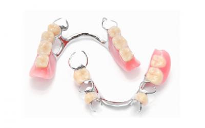 Próteses dentárias: a melhor solução para o sorriso perfeito!