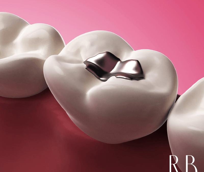 Restauração Dentária: transforme seu sorriso!