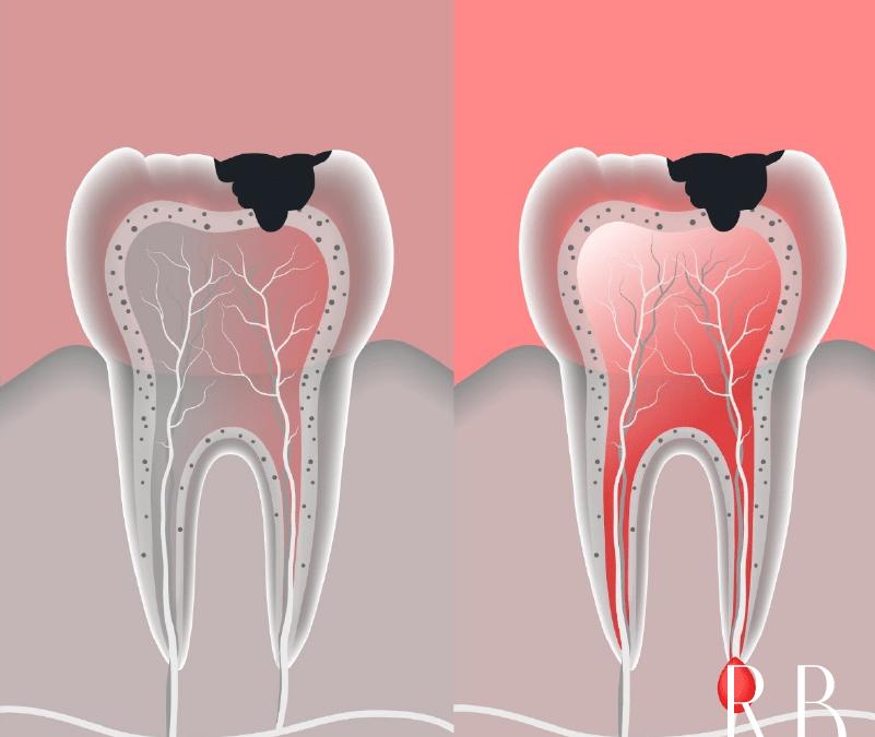Endodontia – tira suas dúvidas sobre o tratamento de canal
