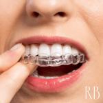 Ortodontia e tratamentos ortodônticos