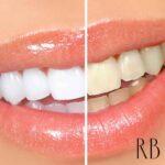 Clareamento dental e dentes brancos