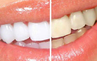 Mitos e verdades sobre o clareamento dental