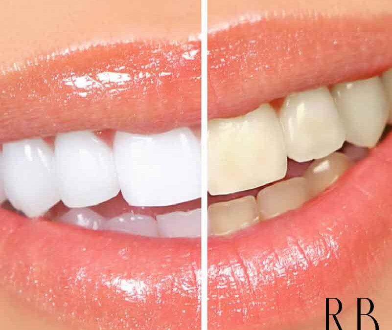 Clareamento Dental Com Excelentes Precos Em Bh