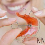 Ortopedia funcional dos maxilares