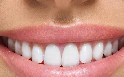 Ortodontia e reabilitação oral – implante dentário