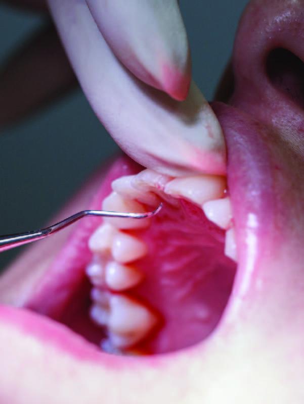 Periodontia - gengivas e saúde bucal