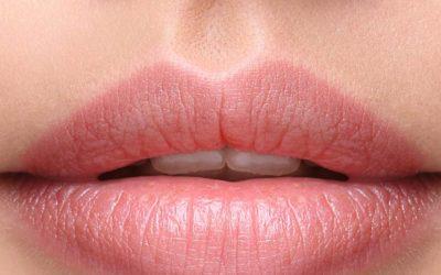 Preenchimento labial com ácido hialurônico – Mitos e Verdades