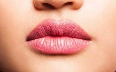O que você precisa saber sobre o preenchimento labial e facial