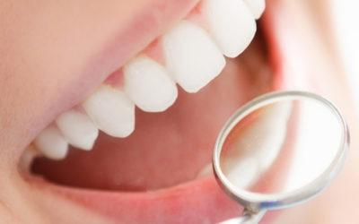 Limpeza de dente: gengivite, tártaro, cárie, placa bacteriana
