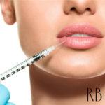 Preenchimento labial: preenchimento bigode chinês, lábios Angelina Jolie