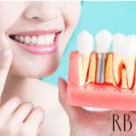 Reabilitação oral: implantodontia, periodontia, prótese dentária e tratamento de canal