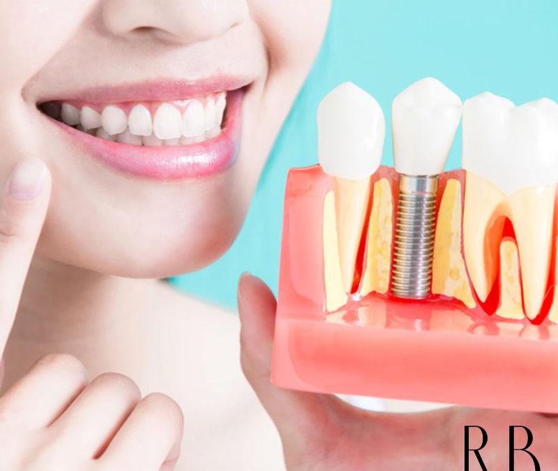 Reabilitação oral: tratamento de canal, de gengiva e implantes
