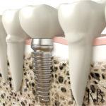 Implante dentário: prótese fixa, prótese dentária, dor de dente