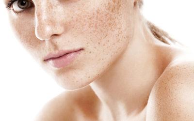 Bichectomia: como afinar o rosto e alcançar harmonização facial