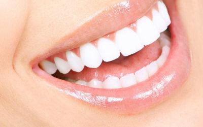 Plástica gengival – Correção do sorriso gengival