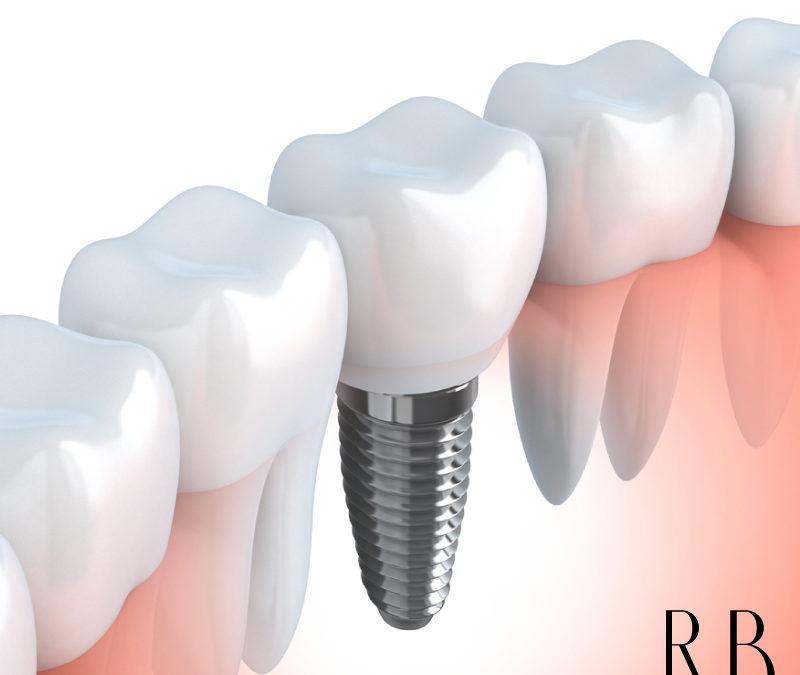 Implante dentário – Tire suas dúvidas