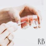 consultório odontológico em BH: Implante dentário