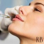 preenchimento-de-labios-acido-hialuronico-na-boca
