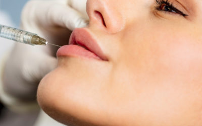 Preenchimento Labial BH – Procedimentos estéticos