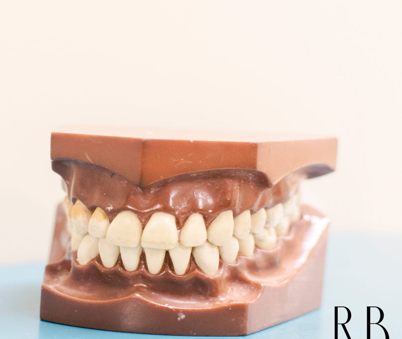 Clínica de implantes dentários em Belo Horizonte