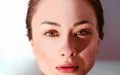Preenchimento nas olheiras – Preenchimento com ácido hialurônico