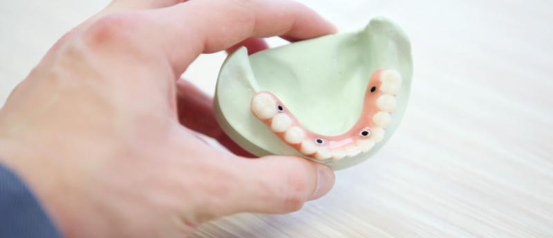 implante-dentario-bh-implante-dentario-implante-dentario-total
