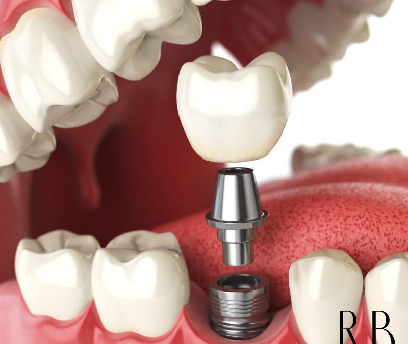 Clínica de Implantes – Implante Dentário e Prótese Dentária
