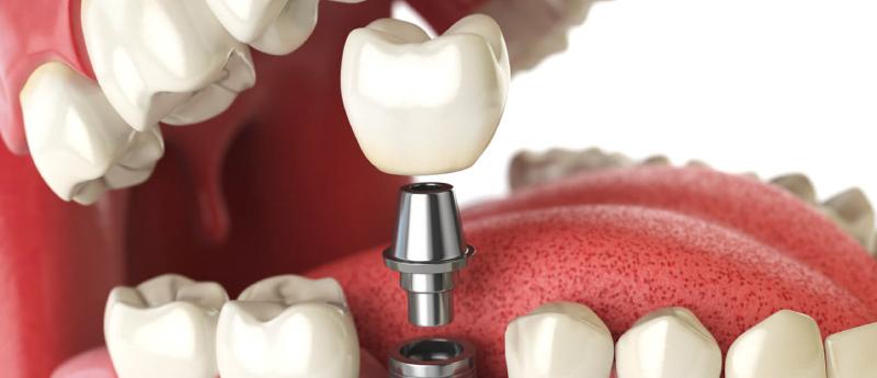 implantes-belo-horizonte-implantes-dentarios-em-bh-clinica-odontologica-bh