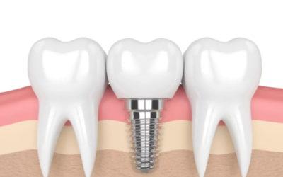 Implantes Dentários em BH – Indicações