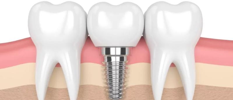 implantes-dentários-em-BH