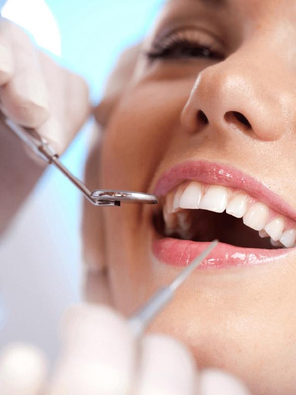 Correção do sorriso gengival / cirurgia de gengiva