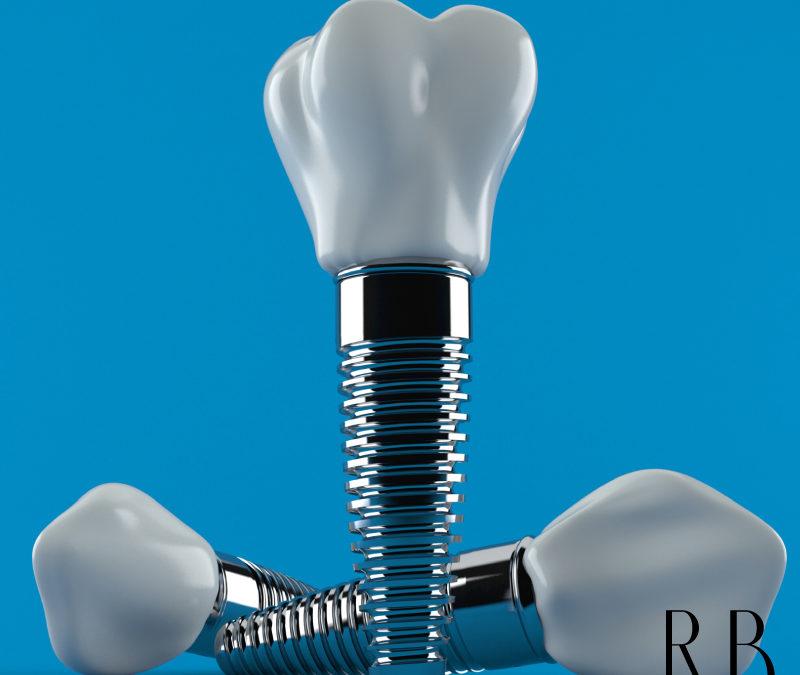 Implante Dentário BH – Clínica de implantes dentários