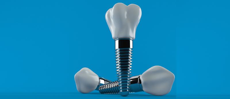 implante-dentario-BH-implantes-dentarios-em-Bh